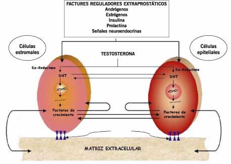 Últimos avances en el diagnóstico de la hiperplasia benigna de próstata
