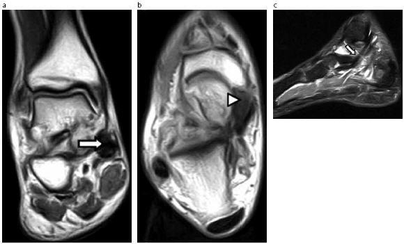 Lesiones tendinosas del tobillo en resonancia magnética: análisis ...