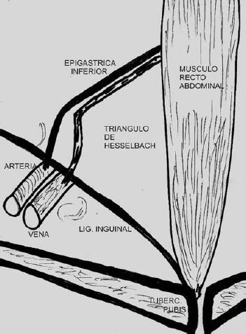 Pubalgia del deportista y hernia de la región inguinocrural: rol de ...
