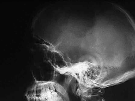 Artur Schüller (1874-1957): una vida fecunda para la radiología con ribetes trágicos